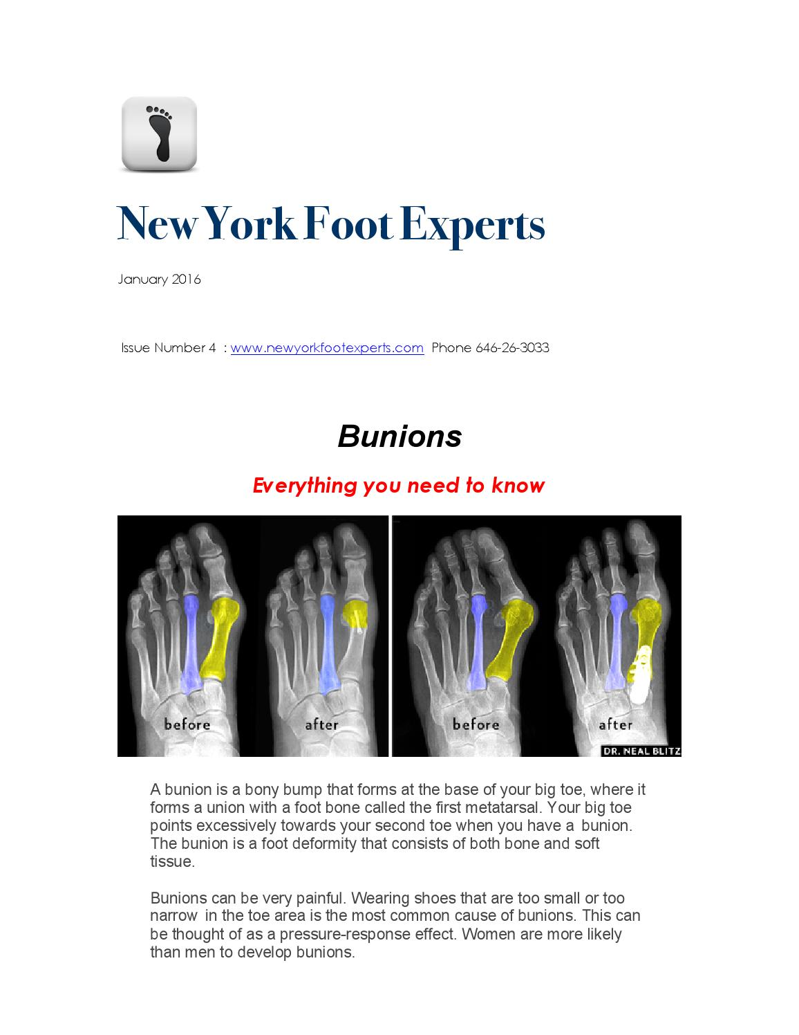 hight resolution of new york foot experts january newsletter bunions