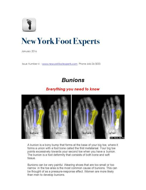 small resolution of new york foot experts january newsletter bunions