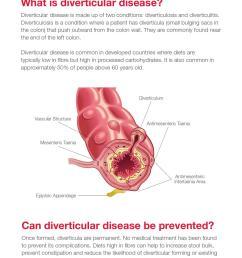 diagram of diverticulum [ 1055 x 1496 Pixel ]