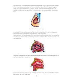 rhinoplasty 27 2 2013 [ 1255 x 1499 Pixel ]