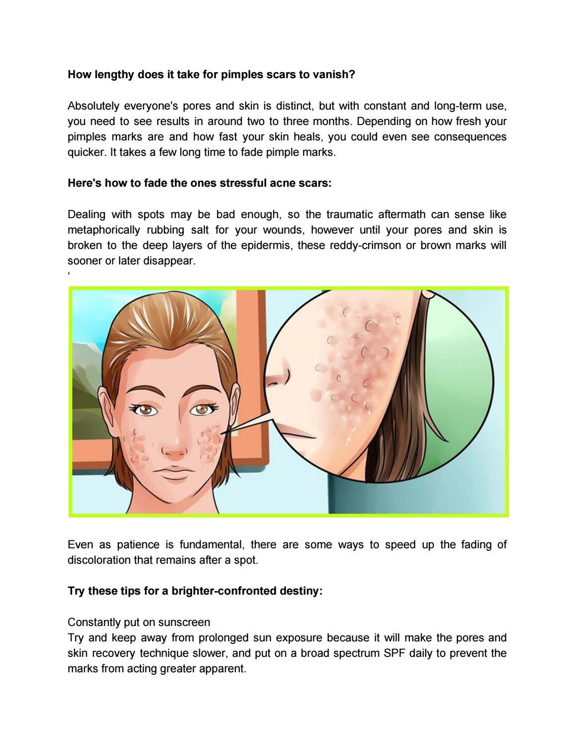hight resolution of deep pimple diagram