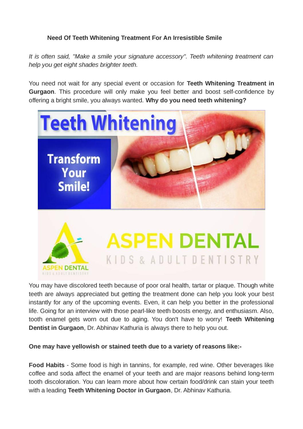 Aspen Dental Price List : aspen, dental, price, Teeth, Whitening, Aspen, Dental, TeethWalls
