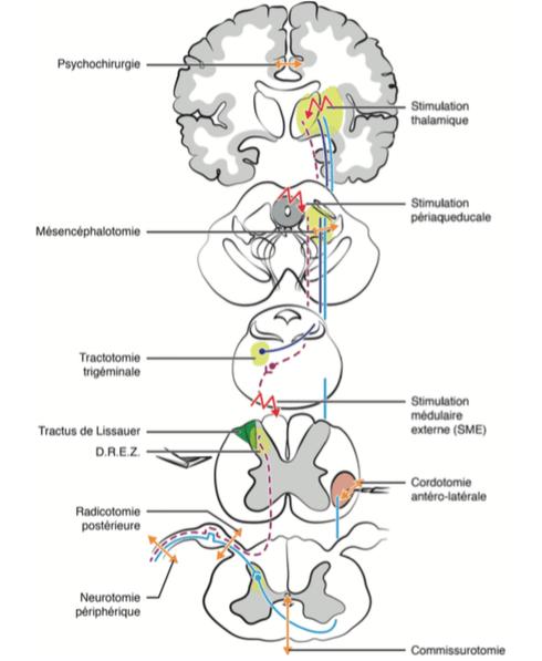 Les Composantes De La Douleur : composantes, douleur, Anatomie, Douleur, Neurochirurgien, Marseille, Aix-en-Provence