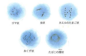 飛蚊癥;ほとんどが生理現象 - 網膜専門醫による各種治療(白 ...