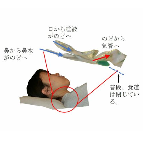 回復體位クッション(唾液を肺に入れない) - 誤嚥 誤嚥性肺炎 安全に口から食べられる完全側臥位法の紹介 ...