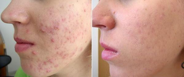 Resultado de imagen para piel con acne