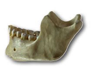 Royal Oak Jaw Bone Deterioration