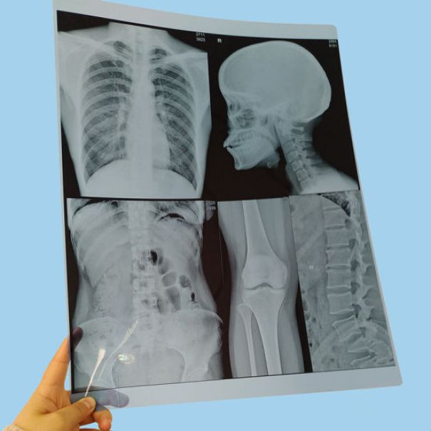 Image result for use of x-ray