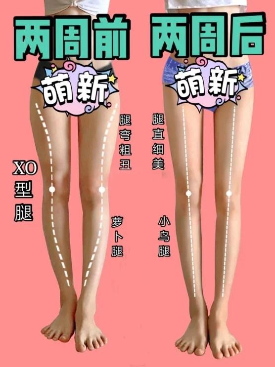 【瘦大腿】5個簡單動作14天拉直腿型 拯救XO型腿 視覺上高3CM   GirlStyle 女生日常