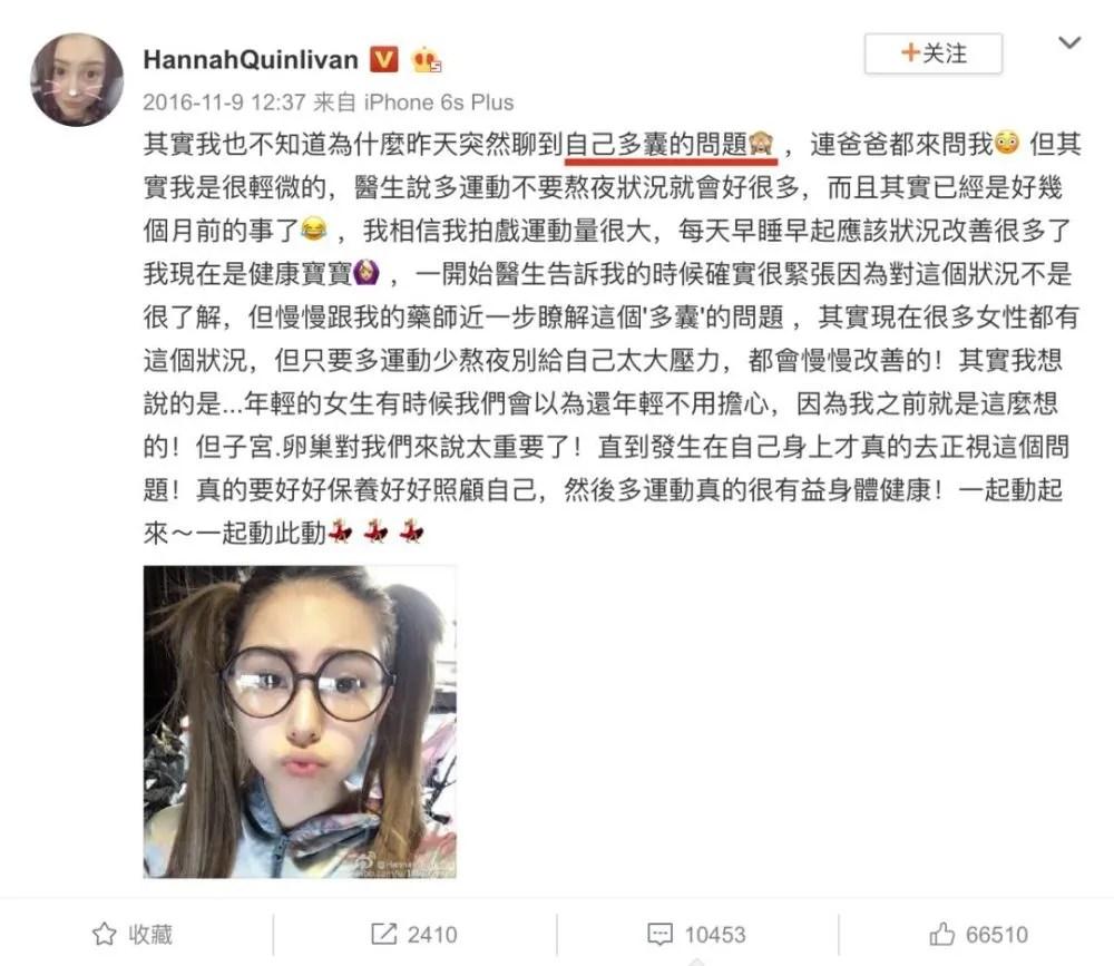 女明星為什麼難懷孕,昆凌是第一個坦白的? | PTT新聞
