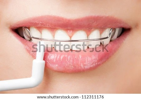 Cleaning Teeth With Retainer Stock Photo 112311176 : Shutterstock