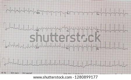ECG heart chart scan vector illustration Stock Photo