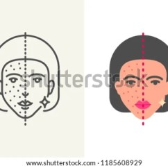 Acne Face Diagram Electrical Wiring Diagrams Household Free Type Illustration Download Vector Art Stock Treatment Skin Cleansing Procedure Icon Flat And Outline Style