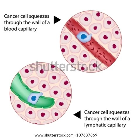 Cancer Cell Squeezes Through Blood And Lymph Vessel During Metastasis Stock Vector Illustration 107637869 : Shutterstock