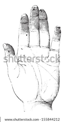 Sclerosis or Sclerotizis of the left hand (palmar surface