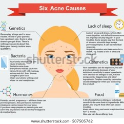 Acne Face Diagram How To Draw Bar Pimple Girl Vector Illustration Download Free Art Causes Skin Problems And Diseases Beauty Infographics Dermatology