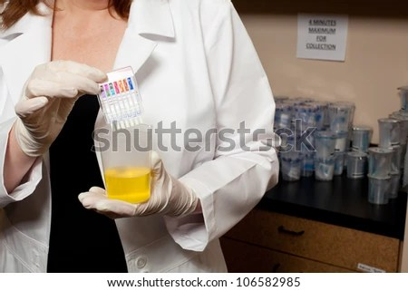 stock photo : A doctor holding a urine sample