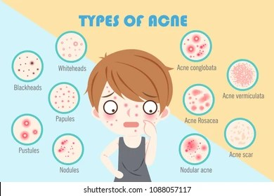 acne face diagram 4 speed blower motor wiring furnace fan efcaviation pimple boy all data nodular images stock photos vectors shutterstock under the skin pimples