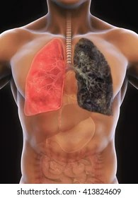 smokers lungs images stock