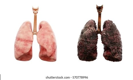 smoker lung images stock