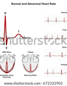 Normal and abnormal heart rate infographic diagram including activation of atria ventricle recovery wave also chart stock illustration rh shutterstock