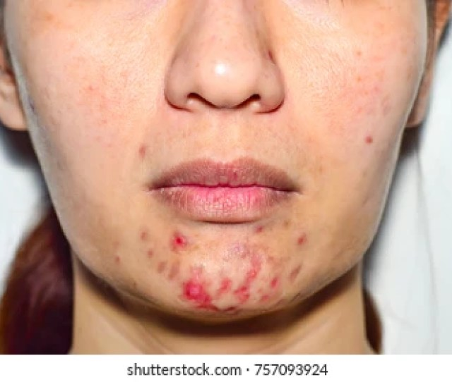 Acne Pus Macro Shot Of Acne Prone Skin Acne Skin Because The Disorders Of