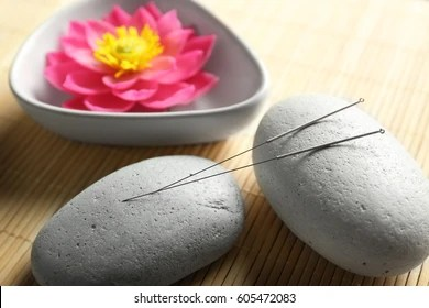 acupuncture images stock photos