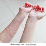 Orticaria: cause, sintomi,trattamento