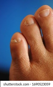 Split Pinky Toenail : split, pinky, toenail, Pinky, Stock, Images, Shutterstock
