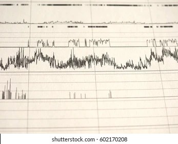 Similar Images, Stock Photos & Vectors of polysomnography (PSG) sleep study multi parametric test diagnostic tool - 607428437 | Shutterstock