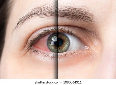 eyes images stock photos