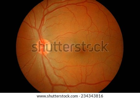 diagram of the left eye toyota wiring diagrams download retinal image patient chronic stock photo edit now in a with hypertension and dyslipidemia having blurring
