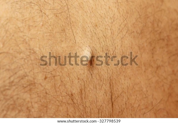 Sebaceous Cyst Filled Bump On Back Stock Photo (Edit Now) 327798539