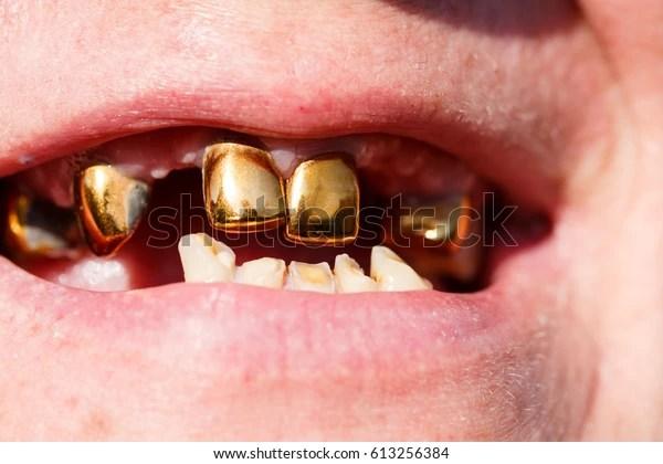 Smile Missing Teeth Gold Teeth Stock Photo (Edit Now) 613256384