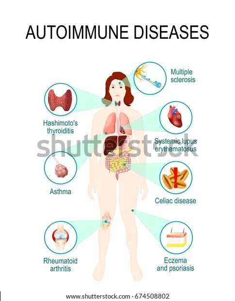 Autoimmune Diseases Tissues Human Body Affected Stock Vector (Royalty Free) 674508802