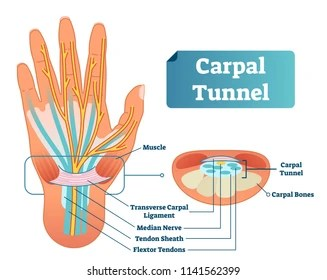 hand nerves diagram wiring for 2 dual 4 ohm subs images stock photos vectors shutterstock carpal tunnel vector illustration scheme medical labeled closeup with isolated muscle transverse