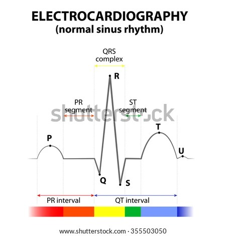 labeled ekg diagram 2004 gmc denali radio wiring ecg heart normal sinus rhythm schematic stock vector royalty free of a in representation wave and segment names
