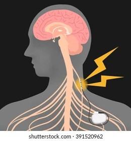 vagus nerve diagram bohr worksheet answer key images stock photos vectors shutterstock human brain and stimulation vns image illustration
