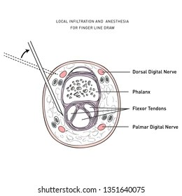 Anesthesia Mask Stock Illustrations, Images & Vectors