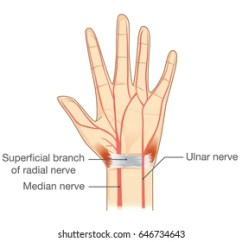 Radial Nerve Diagram Similarities And Differences Between Mitosis Meiosis Venn Royalty Free Stock Images Photos Vectors Shutterstock Nerves Of The Hand In Vector Style Illustration About Human Anatomy