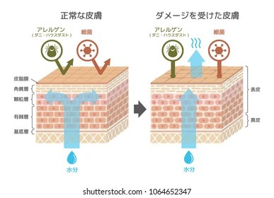 dermis layer diagram 2003 jaguar x type wiring images stock photos vectors shutterstock sectional view of the skin comparison illustration protection effect between healthy and wounded