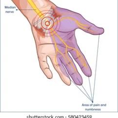 Hand Nerves Diagram Discovery 2 Srs Wiring Images Stock Photos Vectors Shutterstock Transverse Carpal Ligament Compressed Median Nerve