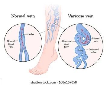 veins in the foot diagram 1997 subaru legacy outback radio wiring leg ulcer images stock photos vectors shutterstock varicose poster vein enlarged and twisted blue blood vessel visible through skin