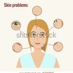 Acne Face Diagram 67 Mustang Wiring Womans Skin Problems Wrinckles Stock Vector Royalty Free Woman S With Pimples Dark Circles Under Eyes