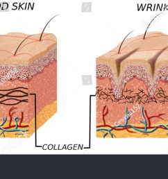 skin anatomy diagram younger and older skin comparation good skin and skin with wrinkles [ 1500 x 727 Pixel ]
