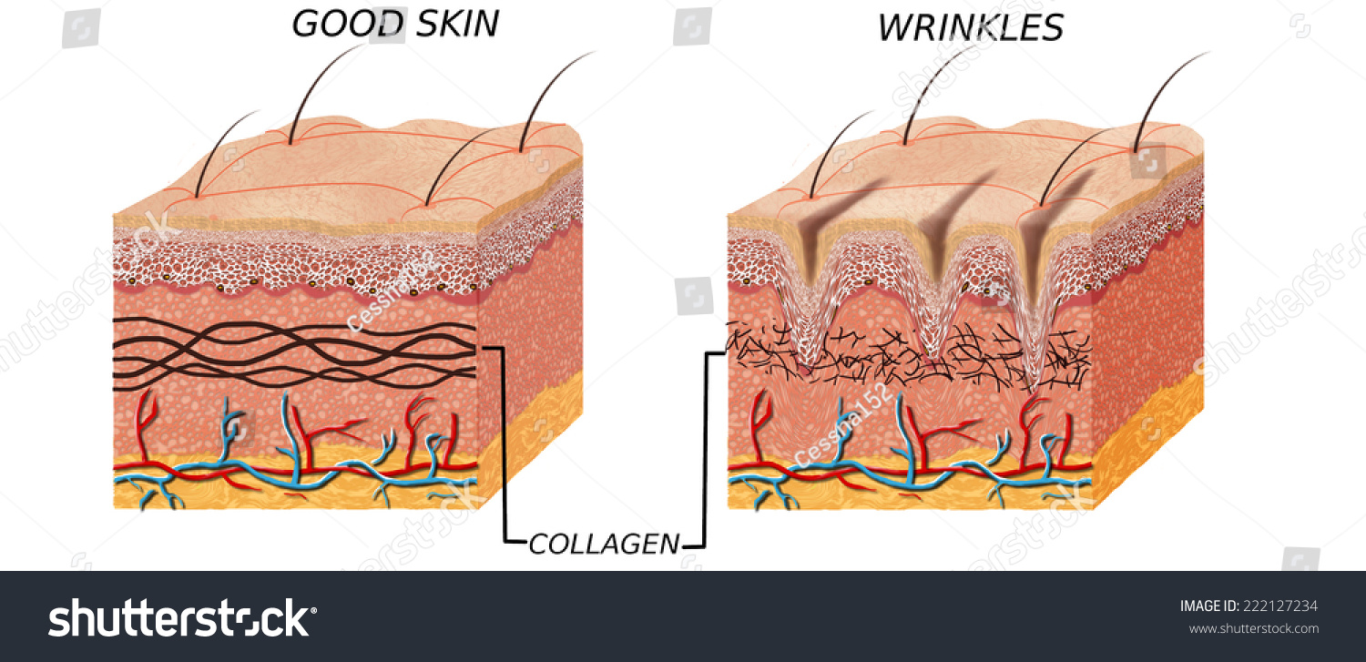 hight resolution of skin anatomy diagram younger and older skin comparation good skin and skin with wrinkles