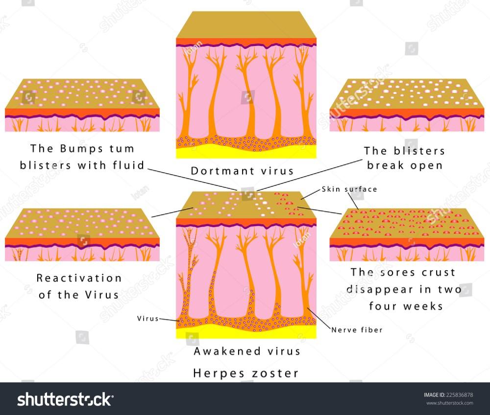 medium resolution of reactivation of the virus herpes chickenpox and shingles