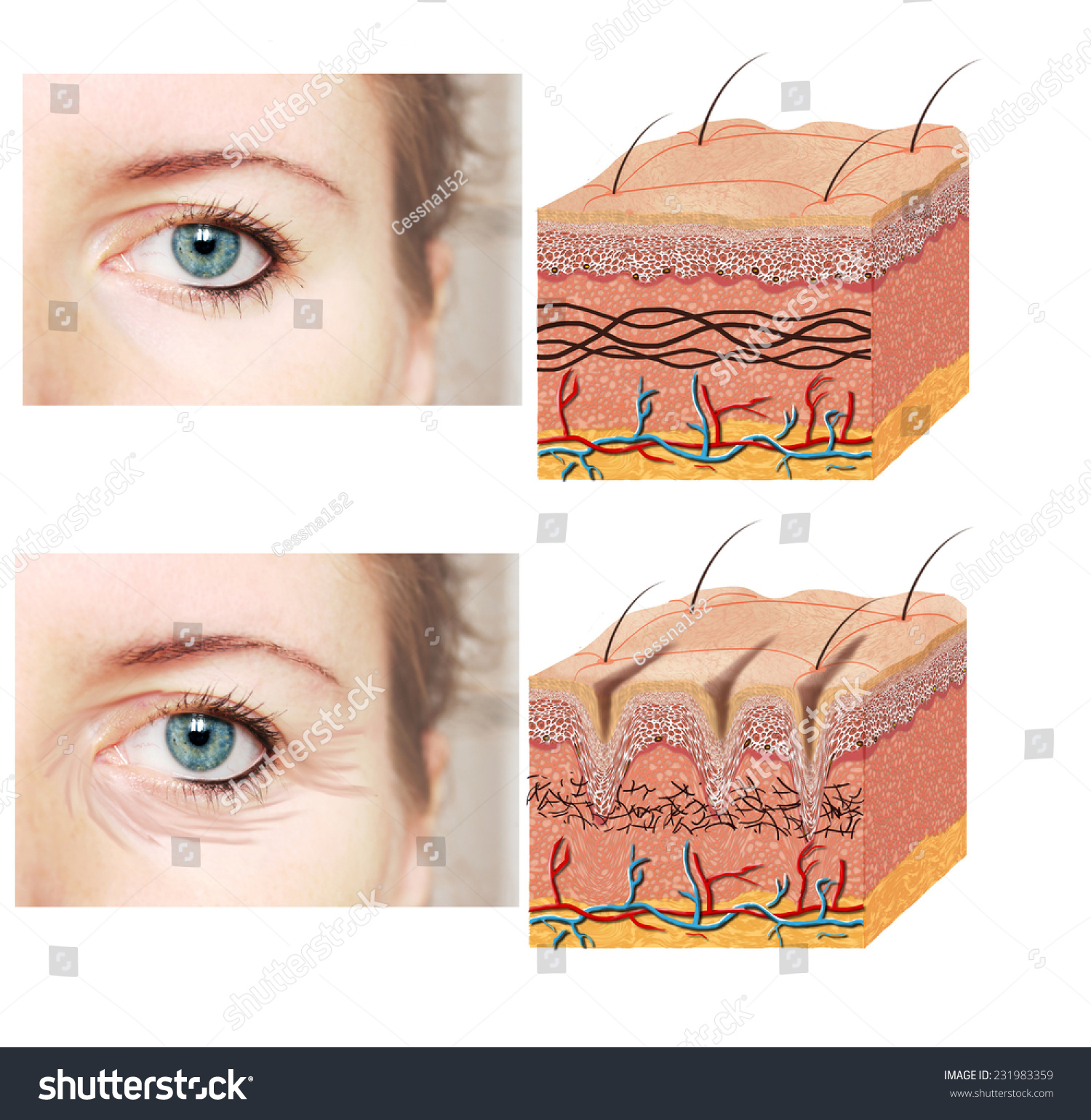 skin cross section diagram 2002 gmc yukon radio wiring royalty free anatomy younger and 231983359 stock older comparation good with wrinkles illustration of showing young