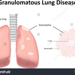Labled Diagram Of The Lungs Mf 135 Wiring Massey Ferguson Tractor Sel System Royalty Free Granulomatous Lung Disease Labeled