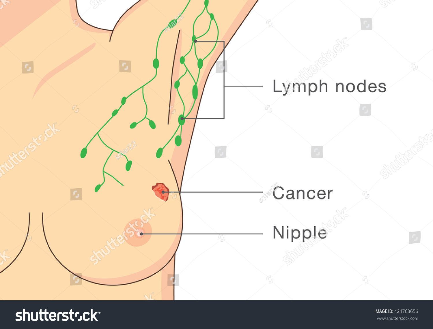 location of lymph nodes in armpit diagram duplex outlet wiring the gallery for gt
